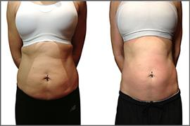 Fat Cavitation with Radio Frequency